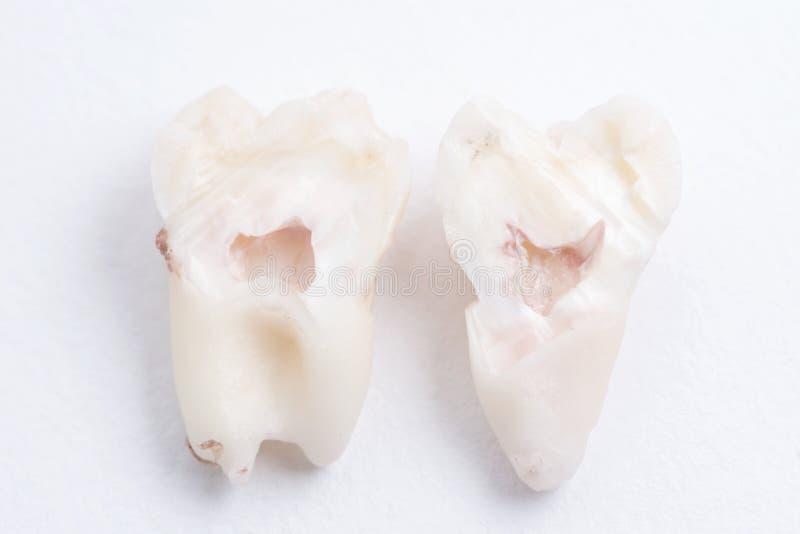 La dent de sagesse extraite a coupé dans la moitié sur le fond blanc photographie stock libre de droits