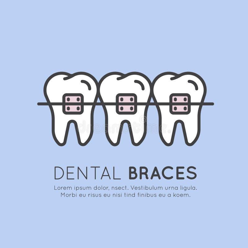 La dent dentaire attache la procédure d'installation illustration libre de droits