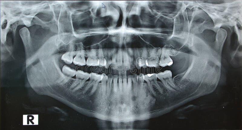 La derecha dental de rayo del mandíbula x del panorama imagenes de archivo