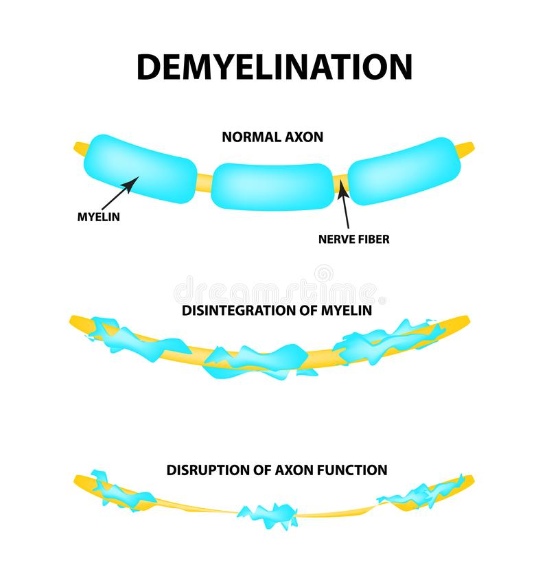 La destruction de la gaine myélinique sur l'axone Myelin endommagé Neurone affecté par sclérose en plaques Multiple du monde illustration stock