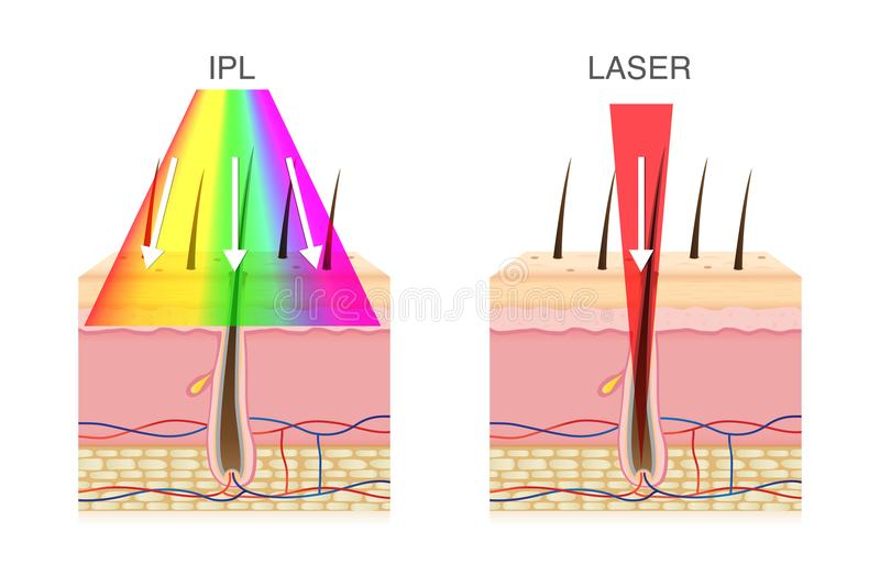 La différence d'utiliser la lumière de chargement initial et le laser dans l'épilation illustration de vecteur
