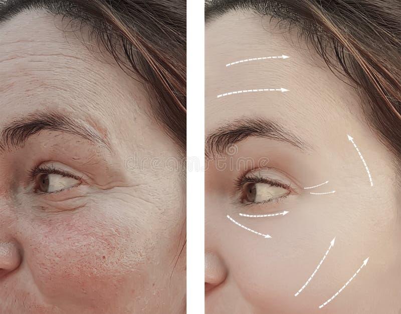 La donna adulta del fronte corruga prima la piega sul fronte dopo le procedure, freccia fotografia stock