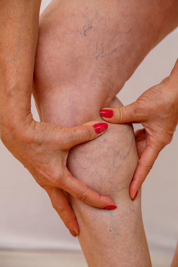 La donna anziana in biancheria intima mostra il primo piano sulle vene varicose sulle sue gambe Foto su un fondo isolato leggero immagini stock