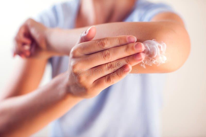 La donna applica la crema sul gomito asciutto Concetto della gente, di sanità e della medicina immagine stock
