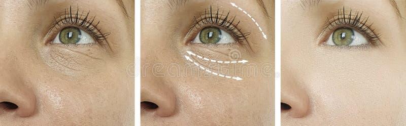 La donna corruga il contrasto di sollevamento gonfiato di terapia di rimozione prima della correzione dell'incurvatura di differe immagini stock