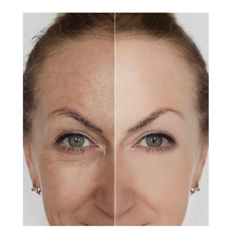 La donna corruga il fronte prima e dopo le procedure del cosmetico di rimozione fotografia stock
