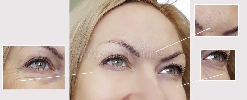La donna corruga il fronte prima e dopo il sollevamento della piega di correzione del trattamento della chirurgia di procedure fotografie stock