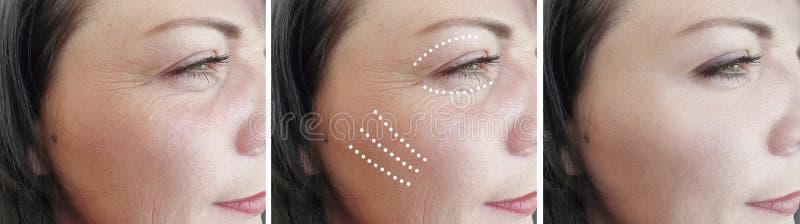 La donna corruga la pelle prima delle procedure di sollevamento di correzione di effetto di cosmetologia di rimozione fotografia stock libera da diritti