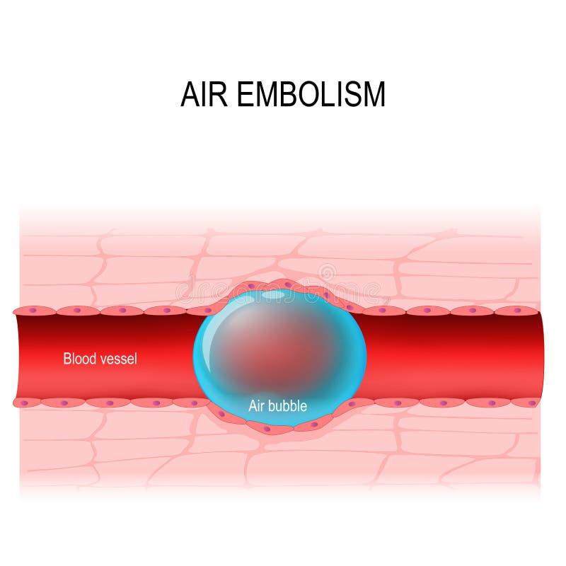 La embolia de aire es un bloqueo del vaso sanguíneo Diagrama del vector ilustración del vector