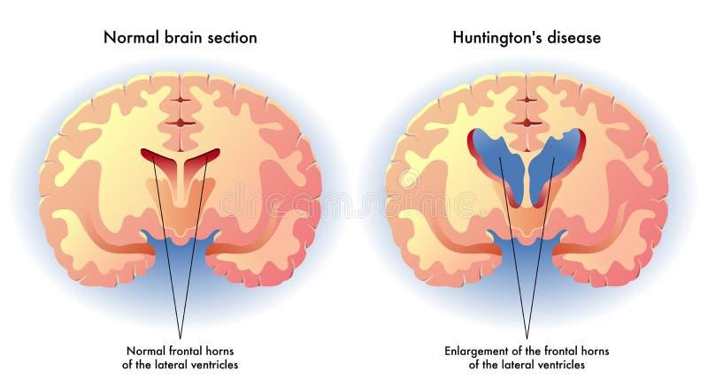 La enfermedad de Huntington stock de ilustración