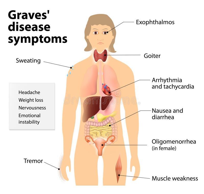 La enfermedad de sepulcros o enfermedad de Basedow Síntomas y muestras ilustración del vector