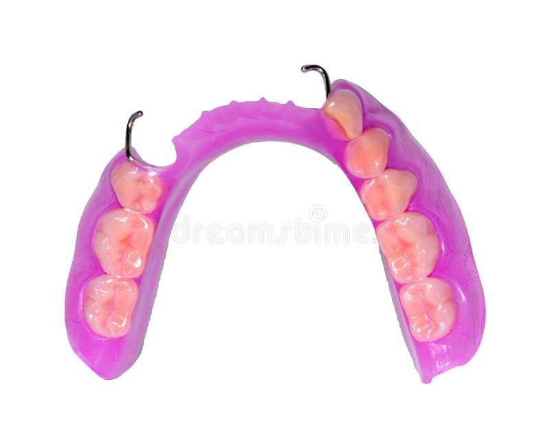 La fabricación de prótesis dentales, las coronas matálicas-cerámicas en los dientes del yeso modela en el tratamiento de paciente stock de ilustración