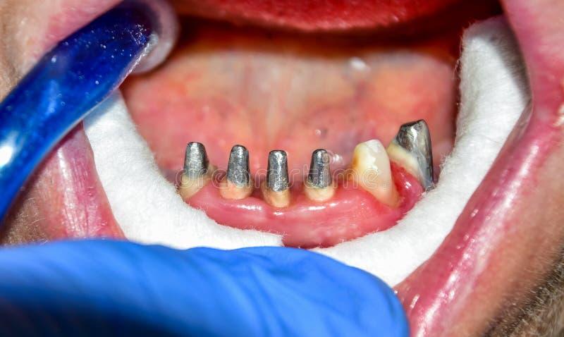 La fabricación de prótesis dentales, las coronas matálicas-cerámicas en los dientes del yeso modela en el tratamiento de paciente foto de archivo