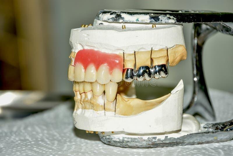 La fabrication des prothèses dentaires, les couronnes de métal céramique sur des dents de gypse modèle dans le traitement des pat image stock