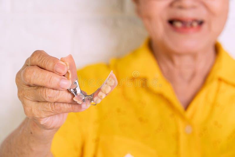 La femme agée asiatique plus de 70 années soit sourire avec quelques dents cassées et de se tenir des dentiers à disposition Dent photos stock