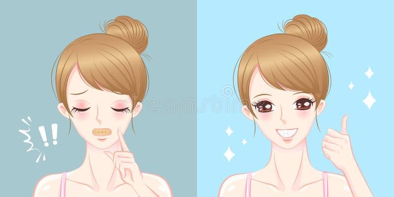 La femme avec la dent blanchissent le cocncept illustration de vecteur