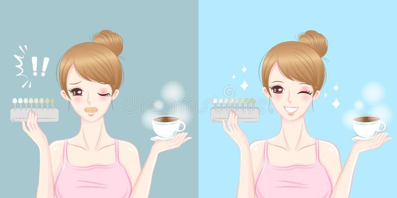 La femme avec la dent blanchissent le cocncept illustration stock