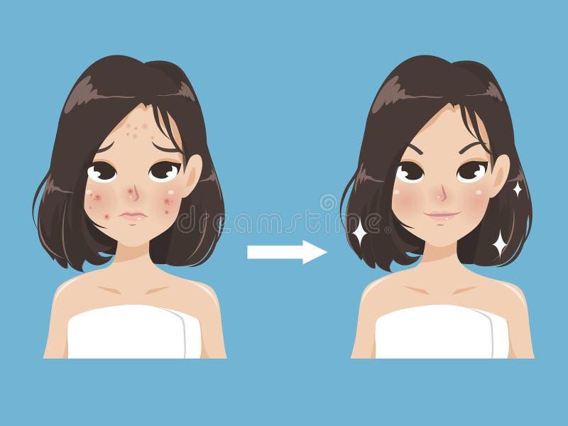 La femme comparent le visage d'acné et le visage de beauté illustration stock