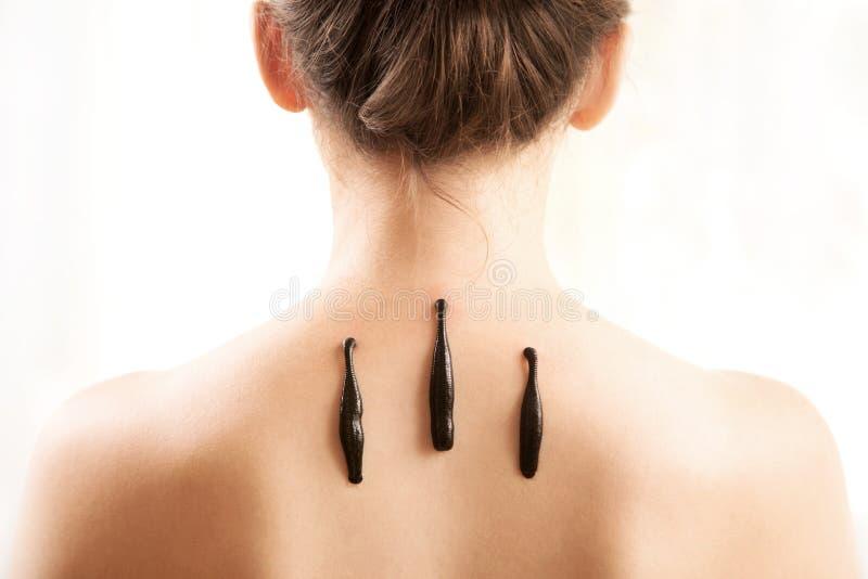 La fille avec des sangsues sur un dos sur un fond blanc image stock