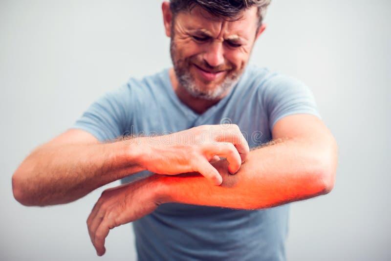 La gente rasguña el picor con la mano, codo, picando, atención sanitaria fotos de archivo