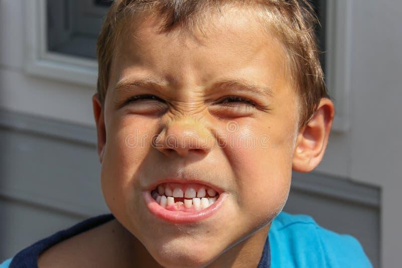 La gioventù maschio perde il suo primo dente immagini stock
