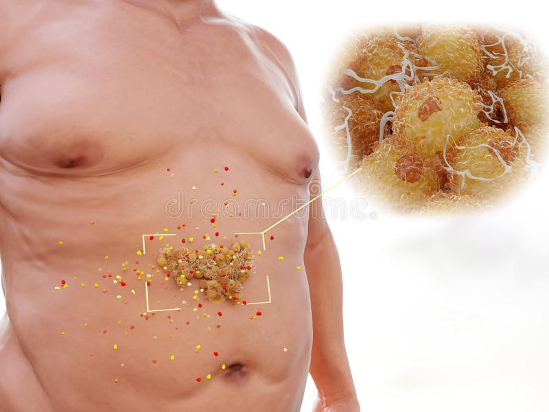 La graisse viscérale est fortement de façon hormonale en activité illustration stock
