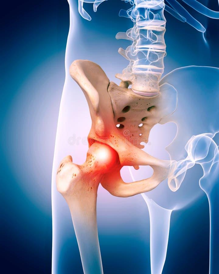 La hanche douloureuse illustration libre de droits