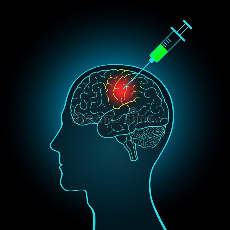 La jeringuilla de la inyección al cerebro, el concepto de tratamiento directo de tumores cerebrales y otras enfermedades stock de ilustración