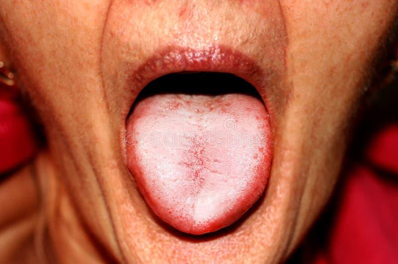 La lengua está en una incursión blanca Candidiasis en la lengua foto de archivo