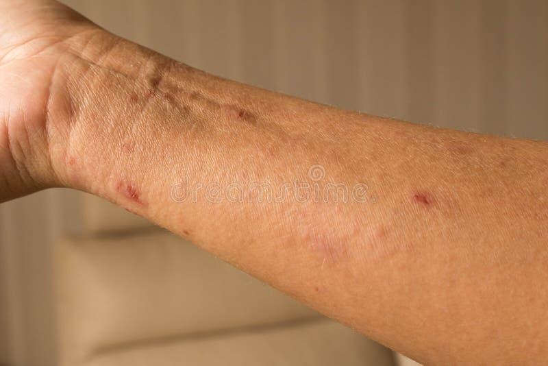 La main de la fille avec la dermatite atopique Le concept de la santé et de moi photographie stock libre de droits