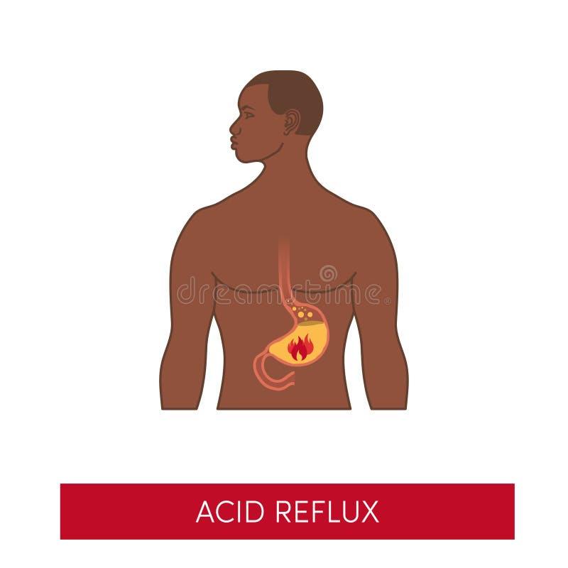 La maladie acide de reflux illustration libre de droits