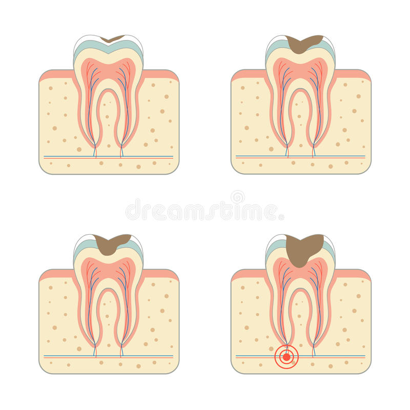 La maladie de carie dentaire illustration stock