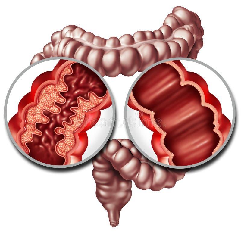 La maladie de Crohn et intestin sain illustration stock