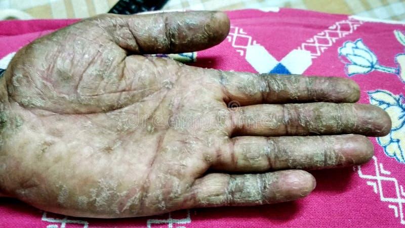 La maladie de psoriasis sur la main de l'homme images stock