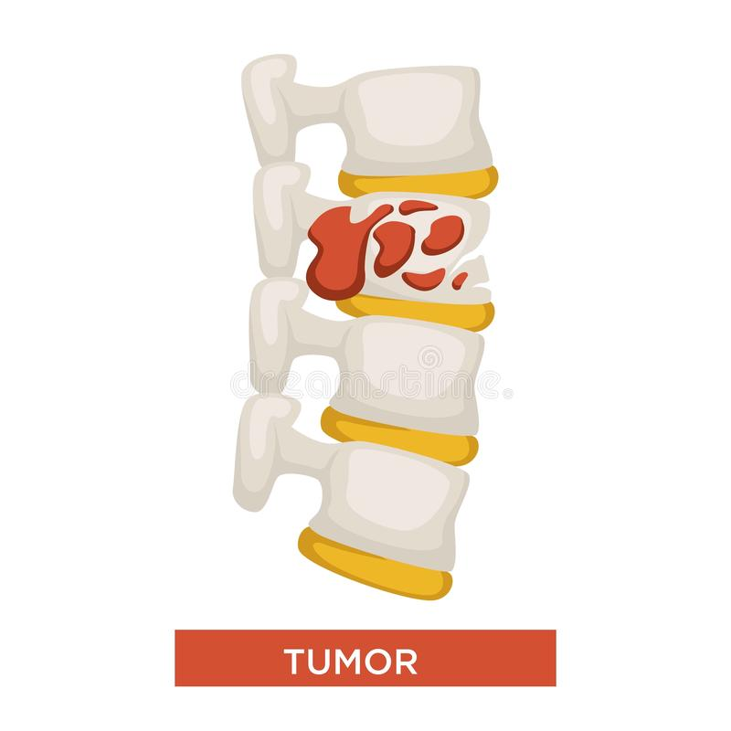 La maladie de tumeur d'os ou médecine squelettique de cancer illustration de vecteur