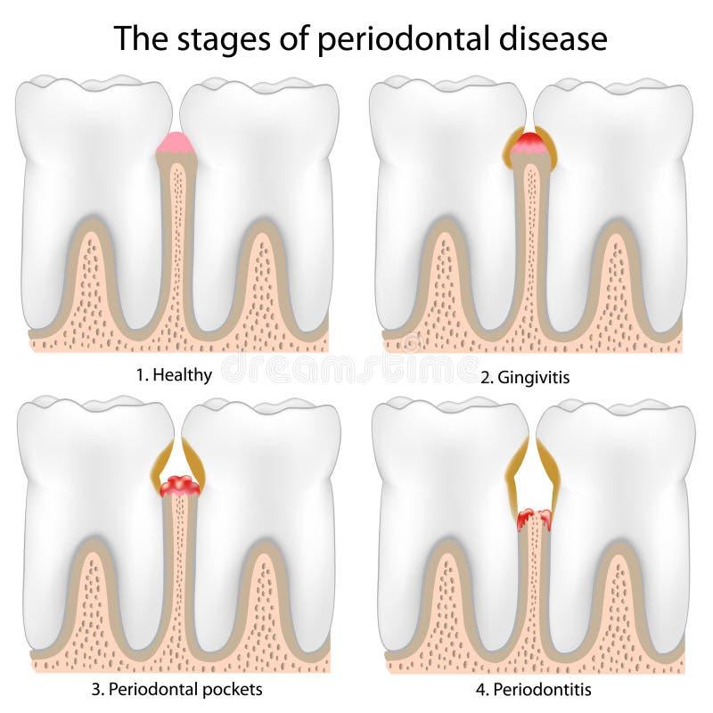 La maladie périodontique illustration de vecteur