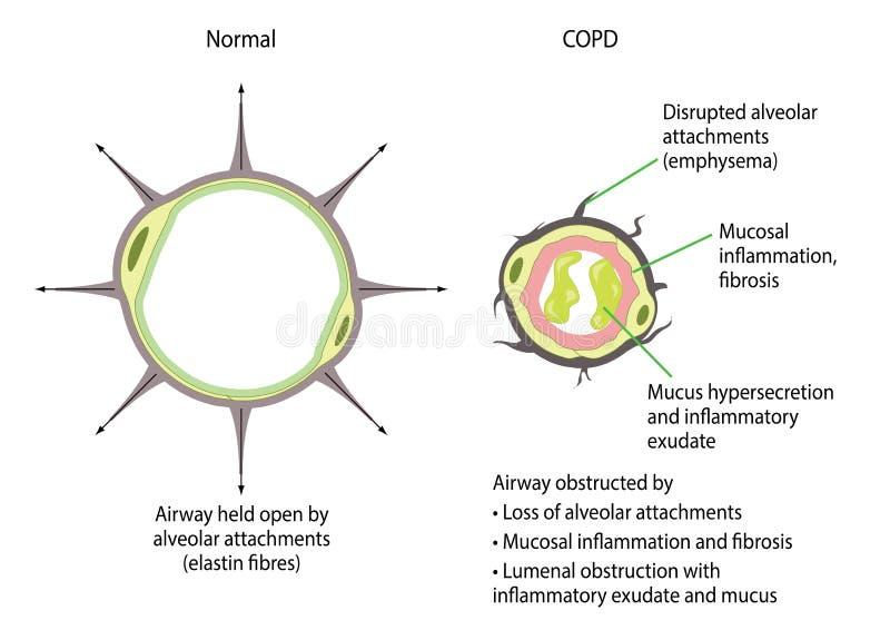 La maladie pulmonaire obstructive continuelle illustration de vecteur