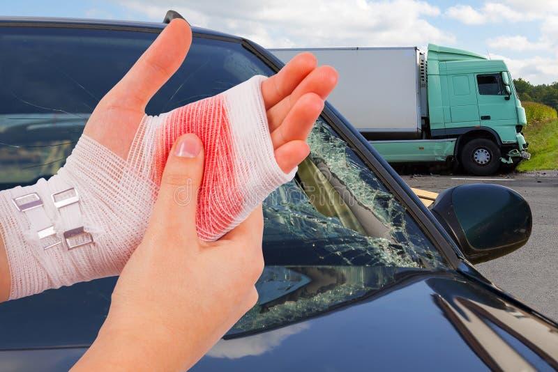 La mano danneggiata ha legato dalla fasciatura bianca all'incidente stradale immagine stock libera da diritti