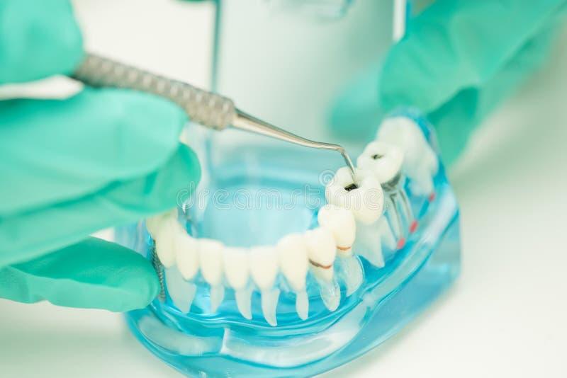 La mano del dentista demuestra para utilizar la carie de limpieza de la herramienta dental fotografía de archivo