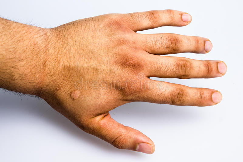 La mano del hombre con la cicatriz de la quemadura de cigarrillo fotos de archivo