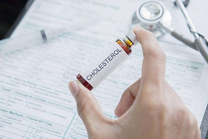 La mano masculina del doctor sostiene la droga para el colesterol foto de archivo