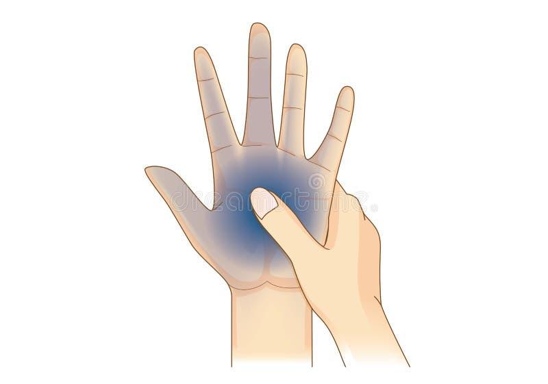 La mano tiene síntoma del entumecimiento libre illustration