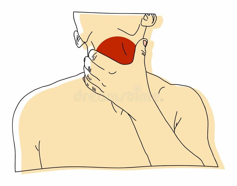 La maschera dissipata dalla malattia della gola illustrazione vettoriale