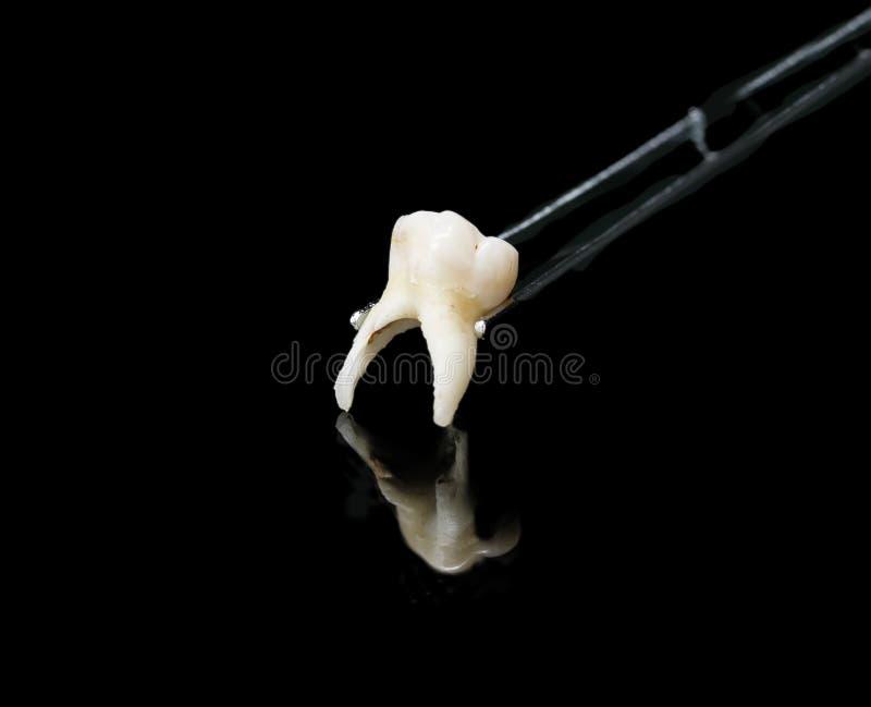 La mauvaise dent enlevée dans le forceps dentaire sur le noir a isolé le backgr photos libres de droits