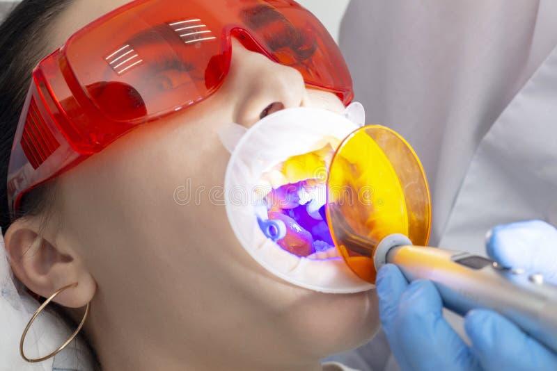 La muchacha en la recepción preventiva en el doctor de The del dentista polimeriza el material de terraplenado en el diente del p imagen de archivo