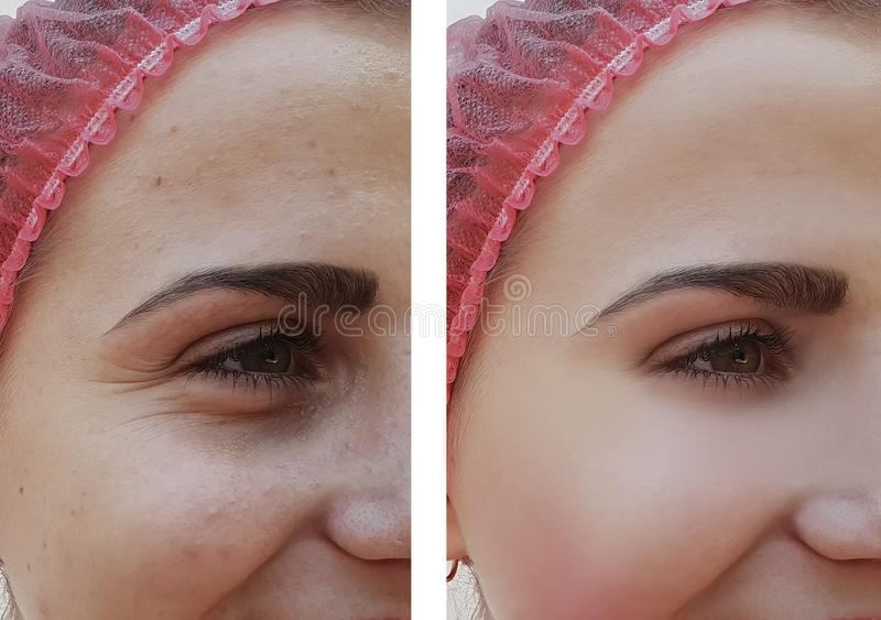 La muchacha hermosa arruga en cosmetología anti del efecto de la regeneración de la cara antes y después de procedimientos imagen de archivo