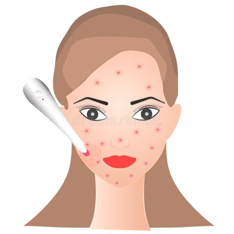 La muchacha quita acné con un laser libre illustration