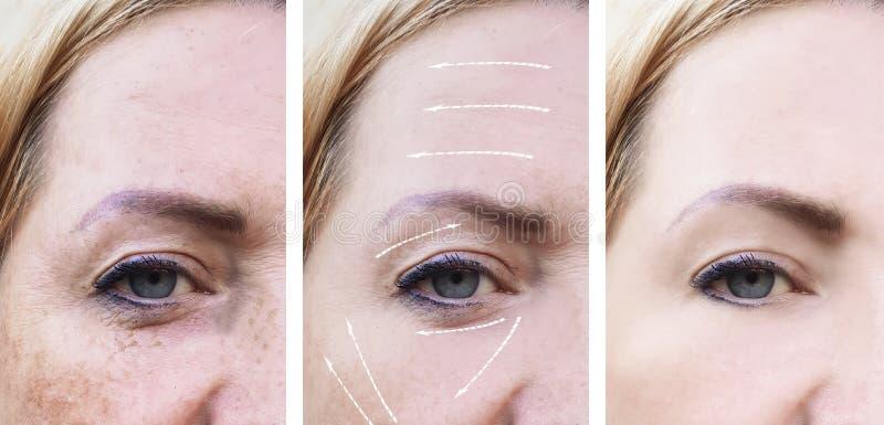 La mujer arruga diferencia de la terapia de la pigmentación del pliegue de la cara antes y después de efecto de los procedimiento imagen de archivo libre de regalías