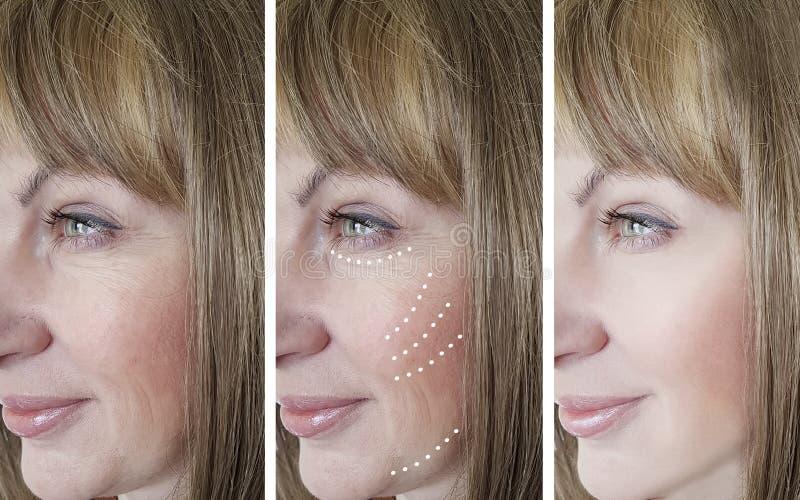 La mujer arruga la elevación retoca antes después de tratamientos de la cosmetología de la regeneración de la corrección de la di imagen de archivo