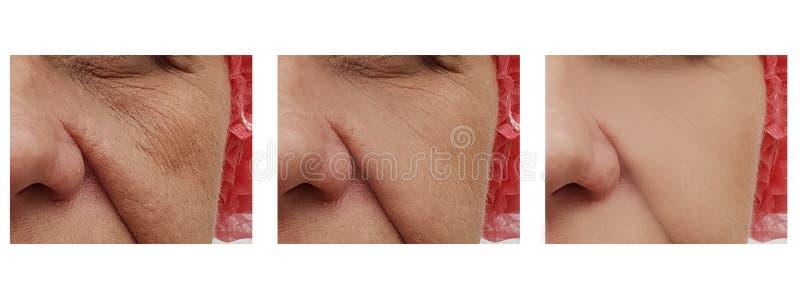 La mujer arruga en la cara, dermatología paciente del retiro de la terapia de la edad antes y después de la salud s del procedimi imágenes de archivo libres de regalías